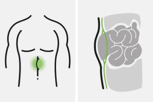 Hernienchirurgie Bad Soden